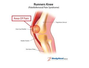 runnersknee